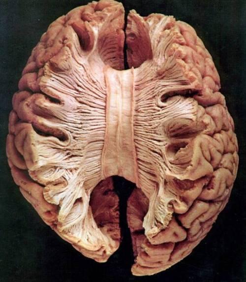 corpus callosum nerve fibers